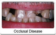 Occlusal damage related to TMJ