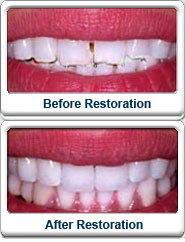 Before After Smile Makeover Veneers
