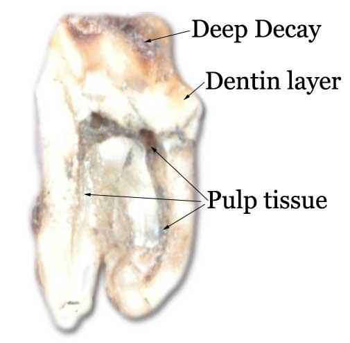 endodontics-cutaway