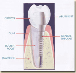 Dental Implant Inside Tooth